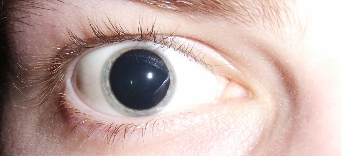 Dilated pupils 2006